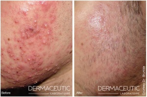 Acne en acne littekens