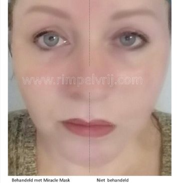 BIO FACE LIFTING